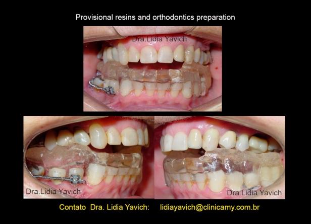10 dentes prov e inicio da ortodontia