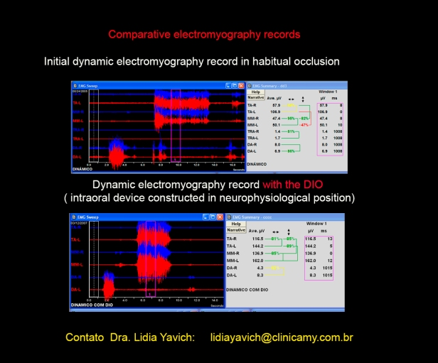 15 registro eletromiografico comparativo
