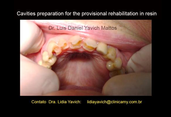 9 dentes cavidades