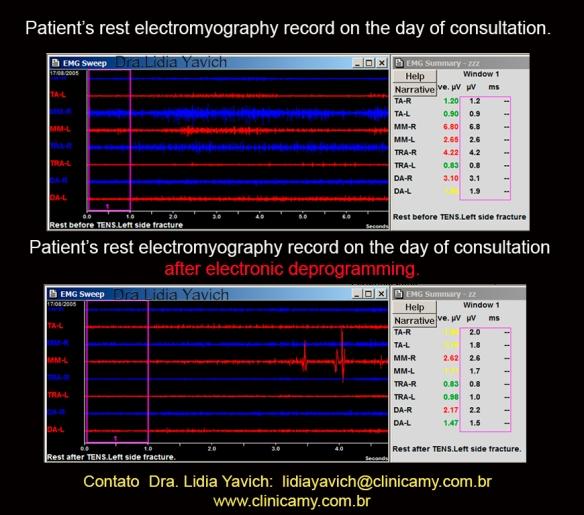 7 Cc ELETROMIOGRAFIA comparativas ante e apos desprogramação