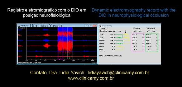 26 eletromiografia DIO