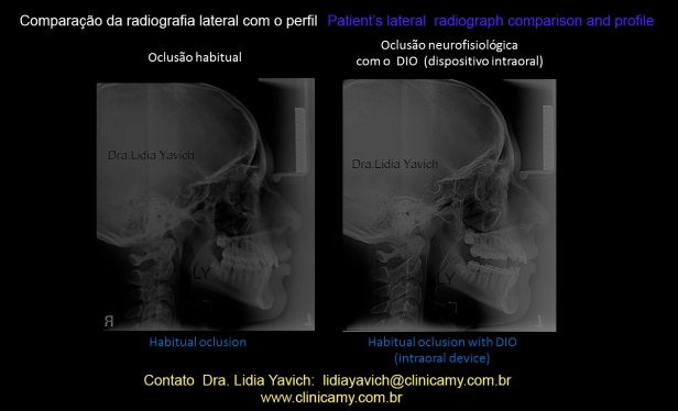 31 comparativas do perfil