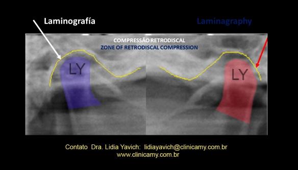 9 ampliação laminografia