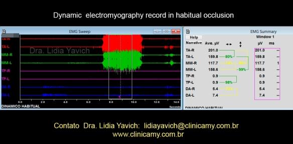 11A eletromiografia dinãmica habitual