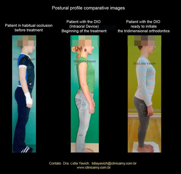 22D Comparativas de perfil com e sem ortese