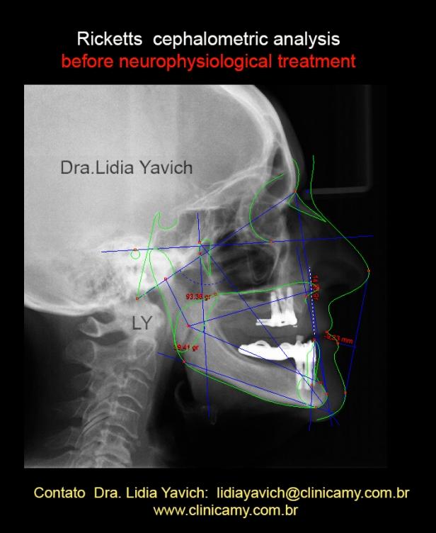 cefalometria 2013 ingles