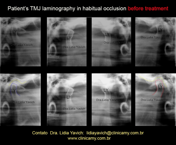 6-laminografia-1
