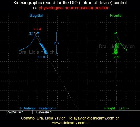 21 Registro cinesiográfico para controlar o DIO em posição neurofisiológica