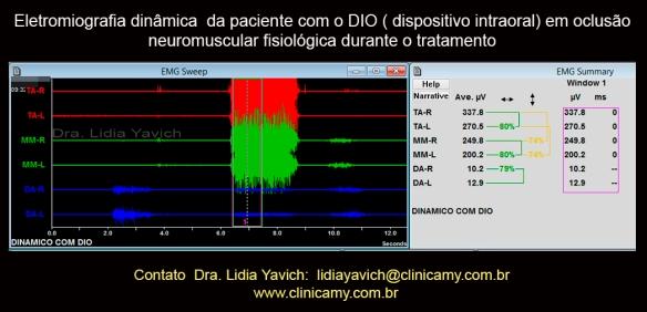 22A eletromiografia com o DIO
