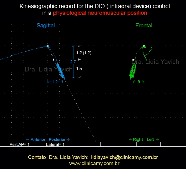 22B 2 Registro cinesiográfico para controlar o DIO em posição neurofisiológica