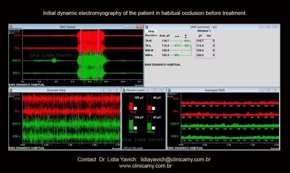 12 eletromiog dinamica inicial